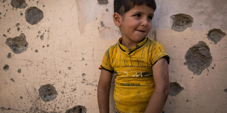 Photo : Tom Peyre-Costa  Kaiwan got his left arm burned when Islamic State group fighters attacked his neighborhood.
